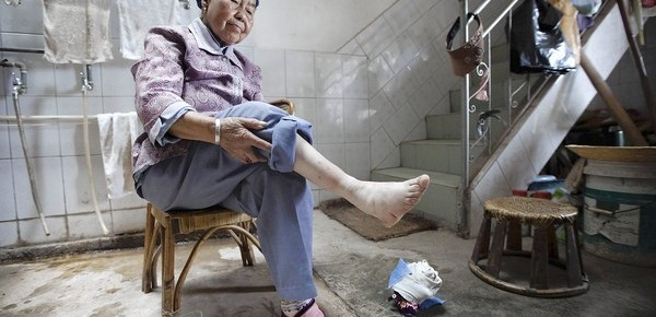 In China, foot binding slowly slips into history